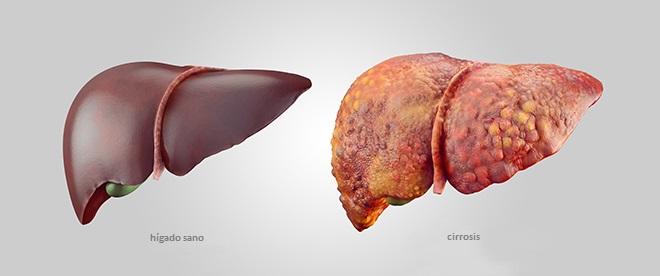 comparativa de higado sano con la cirrosis
