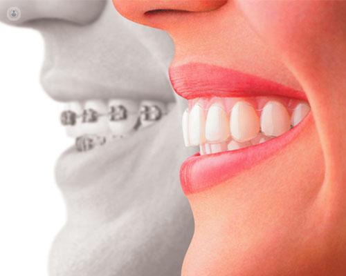 antes y después de ortodoncia
