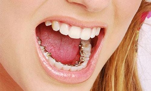 brackets detras de los dientes
