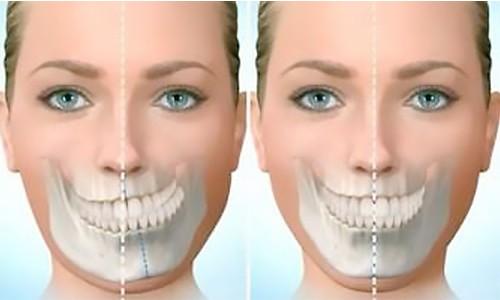 asimetria mandibular