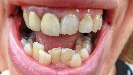 dientes torcidos